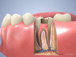 根管治療(臼歯) 2