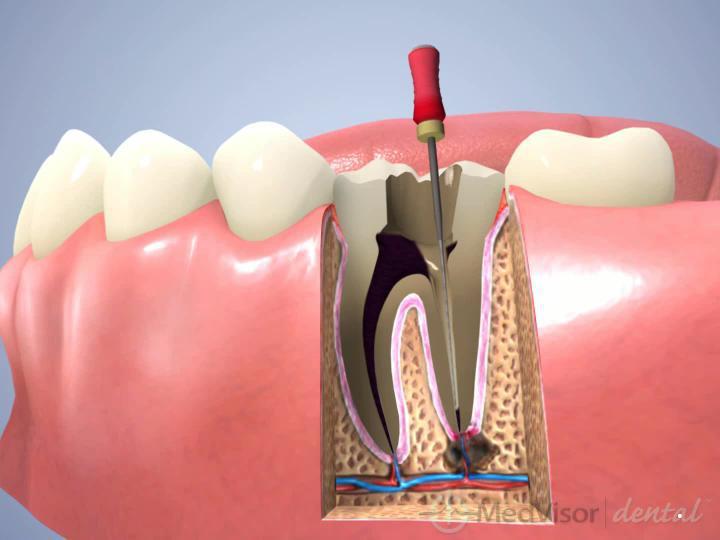 根管治療(臼歯).1