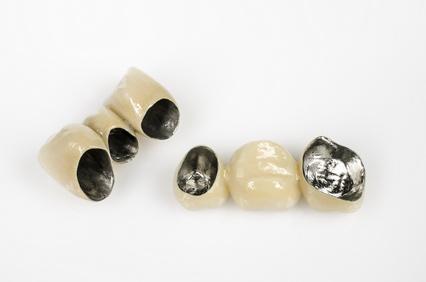 奥歯の詰め物・金属が取れた 割れた・欠けた・外れた