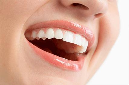 自信が持てる笑顔にするホワイトニング治療