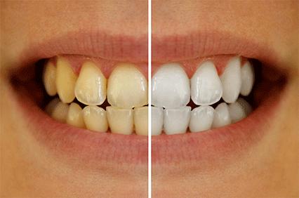 前歯を白くしたい 黄ばみ・変色・着色