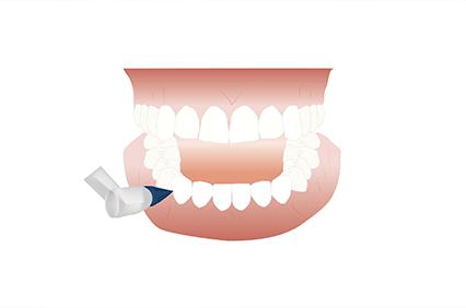 最新の機材を使った予防歯科