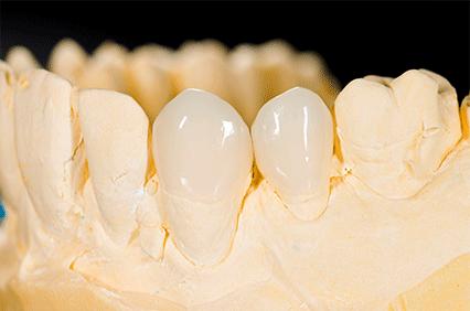 痛みが少ない歯の治療