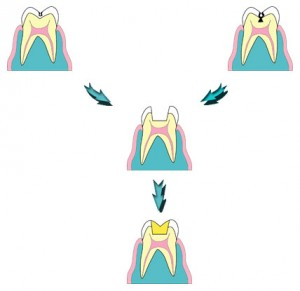 img-tooth
