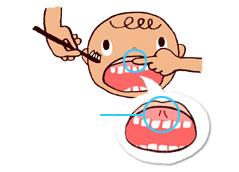 上の前歯・上唇の裏のスジをひっかけないように人差し指でガード