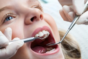 Macro close up of young child with open mouth at dentist.