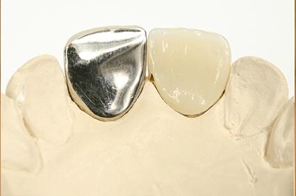 銀歯取れる 銀歯の下の虫歯