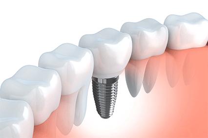 自然な歯に近づけるインプラント治療
