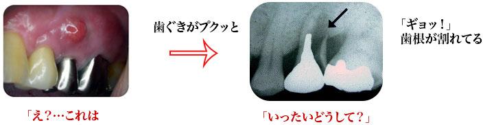 tooth-breaks